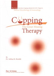 Cupping - The Great Missing Therapy